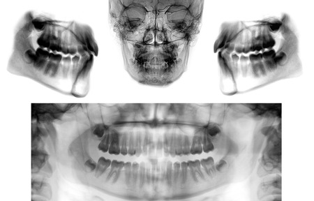 orthopanoramic dental x-ray scan