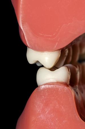 molares: salud dental y el rechinar de dientes El bruxismo Foto de archivo