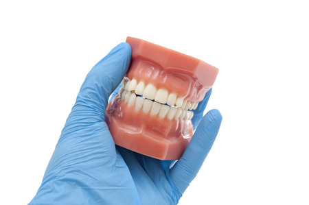 cavity braces: dentist hand show dental mold smiling Stock Photo