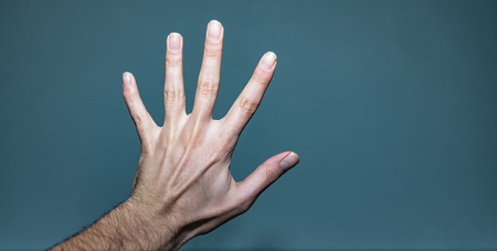 Shot of a white caucasian man's left hand with a broken pinky finger that hasn't healed properly, and a ganglion cyst lump lodged between the dorsal digital nerves of ulnar nerve.