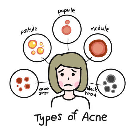 Type of acne , Cute woman cartoon face vector illustration