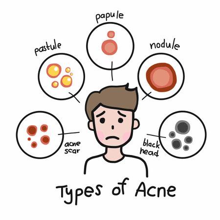 Type of acne , Cute man cartoon face vector illustration Vecteurs