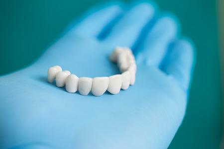 dental healthcare: Dentista que muestra al paciente Puente dental del diente