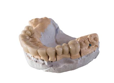 laboratorio dental: puente de cerámica dental aislado en blanco Foto de archivo
