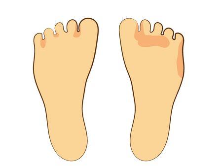 Human body parts soles athletes foot dirt Illustration