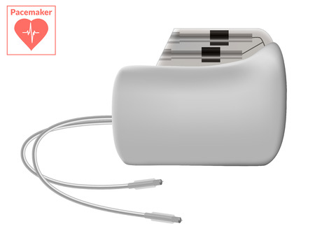 pacemaker: Pacemaker isolated on white background. Vector cardio concept.