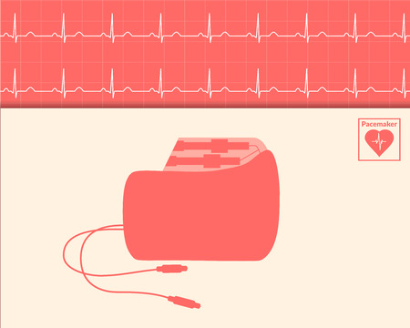 pacemaker: Red silhouette pacemaker and cardiogram background. Vector medical illustration.