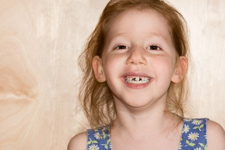 buck teeth: six year old girl funny girl reveals her changing tooth situation. Her deciduous teeth are beginning to fall out Stock Photo
