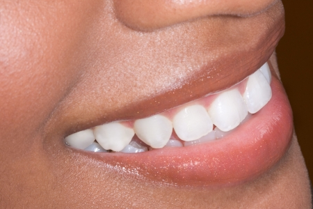 Close up of mouth lips and teeth of dark skinned Afro-American female 스톡 콘텐츠
