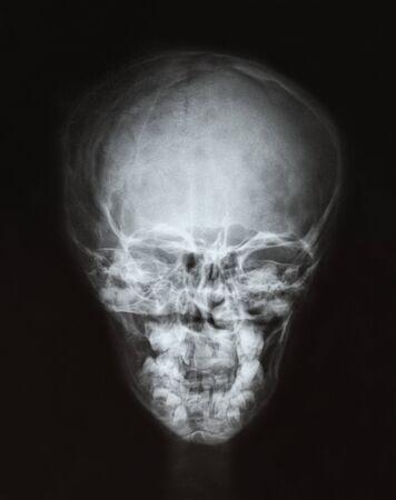 X-ray film of the head, childs skull. Stok Fotoğraf