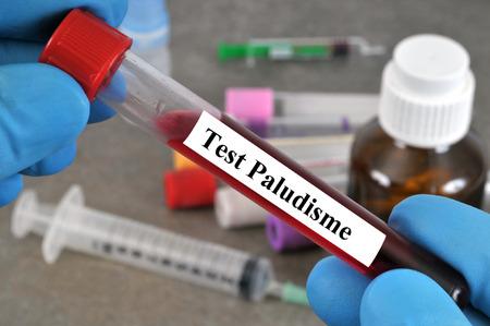 Malaria blood test Banque d'images