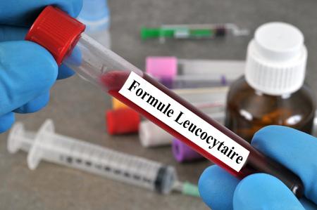 Blood test of leucocyte formula