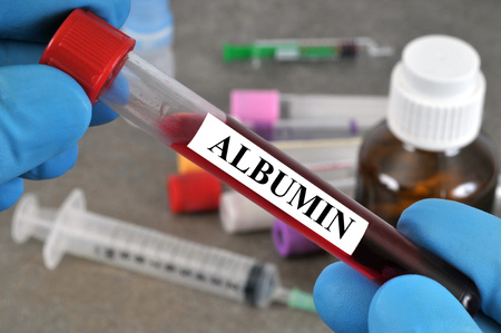 Blood test to detect albumin