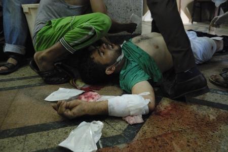 malandros: EL CAIRO - 27 de julio: Gravemente herido Morsi hombre partidario en el hospital improvisado en Rabaa el-Adawya después de que fue atacado por las fuerzas de seguridad y matones. 27 de julio 2013. El Cairo, Egipto