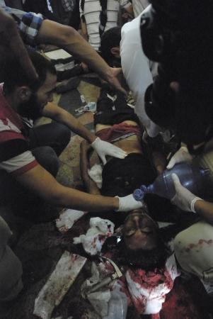 malandros: EL CAIRO - 27 de julio: Los médicos ayudan a morir gravemente herido Morsi partidario joven en el hospital improvisado en Rabaa el-Adawya después de que fue atacado por las fuerzas de seguridad y matones. 27 de julio 2013. El Cairo, Egipto Editorial