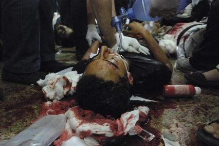 malandros: EL CAIRO - 27 de julio: Dying herido gravemente Morsi partidario joven en el hospital improvisado en Rabaa el-Adawya después de que fue atacado por las fuerzas de seguridad y matones. 27 de julio 2013. El Cairo, Egipto Editorial