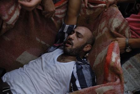 malandros: EL CAIRO - 27 de julio: Los voluntarios tienen un hombre partidario de Morsi heridos a un hospital improvisado en Rabaa el-Adawya después de que fue atacado por las fuerzas de seguridad y matones. 27 de julio 2013. El Cairo, Egipto Editorial