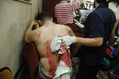 malandros: EL CAIRO - 27 de julio: Gravemente herido Morsi hombre partidario de un AK-47 bala disparada en un hospital improvisado en Rabaa el-Adawya despu�s de que fue atacado por las fuerzas de seguridad y matones. 27 de julio 2013. El Cairo, Egipto. Editorial