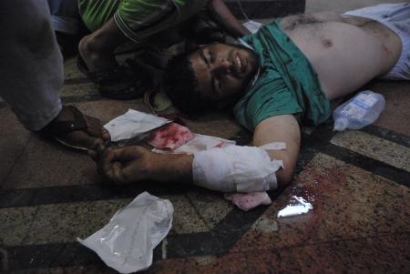 malandros: EL CAIRO - 27 de julio: Gravemente herido Morsi hombre partidario en el hospital improvisado en Rabaa el-Adawya despu�s de que fue atacado por las fuerzas de seguridad y matones. 27 de julio 2013. El Cairo, Egipto
