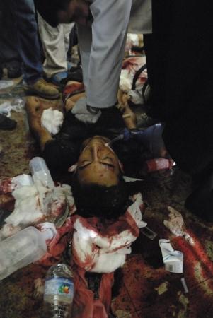 malandros: EL CAIRO - 27 de julio: Doctor ayuda a morir gravemente herido Morsi partidario joven en el hospital improvisado en Rabaa el-Adawya después de que fue atacado por las fuerzas de seguridad y matones. 27 de julio 2013. El Cairo, Egipto