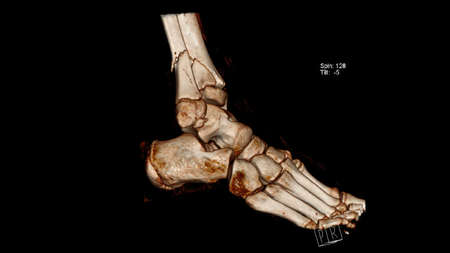 Computed Tomography volume rendering image (CT VR)  of fracture of the leg bones (Tibia and fibula) above the ankle
