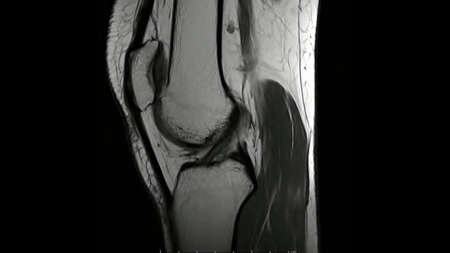 Magnetic Resonance images of  The Knee joint Sagittal T1- weighted Images (MRI Knee joint) showing the anatomy of the knee