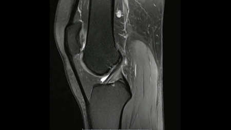 Magnetic Resonance images of  The Knee joint Sagittal Proton density Images (MRI Knee joint) showing the anatomy of the knee Standard-Bild