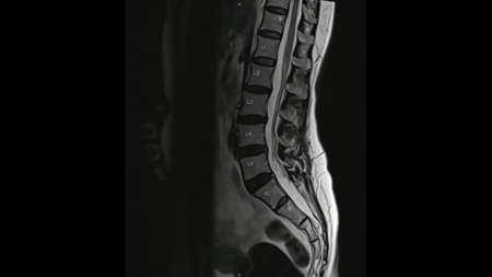 Magnetic Resonance images of Lumbar spine sagittal T2-weighted images (MRI Lumbar spine) showing mild disc disease. Imagens