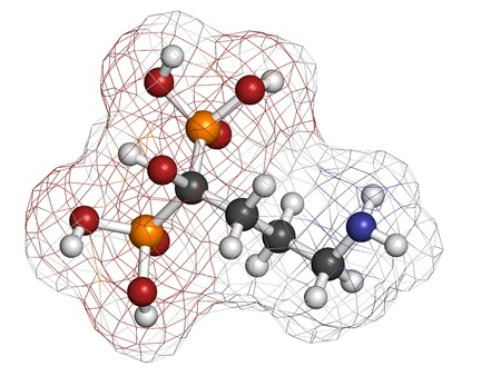 necrosis: Alendronic acid (alendronate, bisphosphonate class) osteoporosis drug, chemical structure. Atoms are represented as spheres with conventional color coding: hydrogen (white), carbon (grey), oxygen (red), nitrogen (blue), phosphorus (orange)