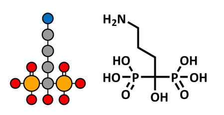 necrosis: Alendronic acid (alendronate, bisphosphonate class) osteoporosis drug, chemical structure. Conventional skeletal formula and stylized representation, showing atoms (except hydrogen) as color coded circles. Illustration