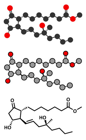 ulceration: Misoprostol abortion inducing drug molecule. Prostaglandin E1 (PGE1) analogue also used to treat missed miscarriage, induce labor, etc. Conventional skeletal formula and stylized representations.