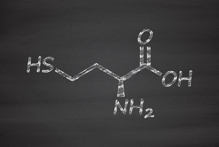 biomarker: Homocysteine (Hcy) biomarker molecule. Increased levels indicate elevated risk of cardiovascular disease. Chalk on blackboard style illustration.