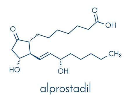 Alprostadil (prostaglandin E1) erectile dysfunction drug molecule. Skeletal formula.