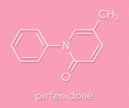 Pirfenidone idiopathic pulmonary fibrosis (IPF) drug molecule. IPF is a rare lung disease. Skeletal formula.