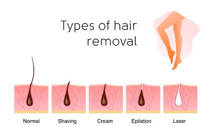 Comparison of the popular methods of hair removal: Normal, shaving, cream, epilation and laser