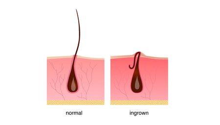 Ingrown hair after shaving, cream or epilator. Anatomy infographics