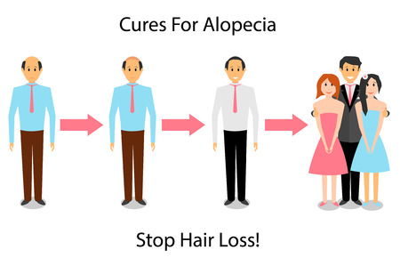 A man is treated for alopecia. The man improves the appearance and personal life of sex with the treatment of baldness. 向量圖像