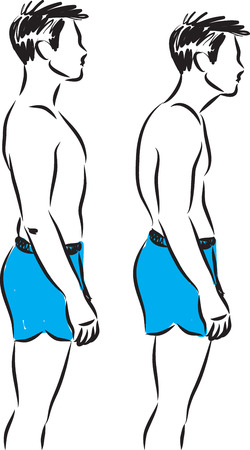 man back pain: Man bad and good standing posture.