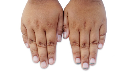 compared: Children nails clean compared with dirty fingernails on white background