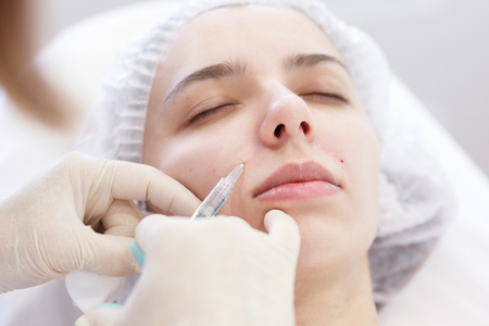 Painful cosmetic procedure on a womans face in beauty spa clinic. Closeup doctor hands in gloves doing needle mesotherapy, correction of a nasolabial fold. Industry of beauty Imagens