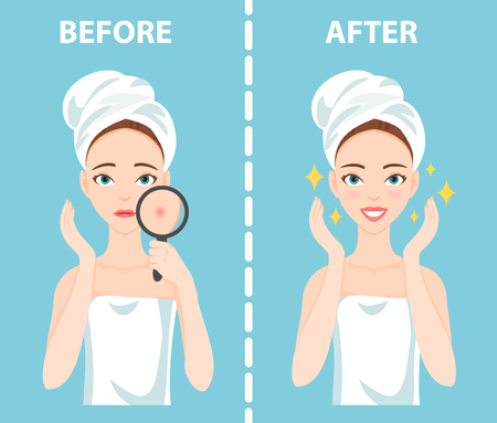 blackhead: Before-After set of upset troubled and happy woman with female facial skin problems needs to care about: acne, pimples.