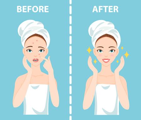 Voor-Na-verzwakte onrustige en gelukkige vrouw met vrouwelijke gezichtshuidproblemen moet zich zorgen maken over: acne, puistjes.