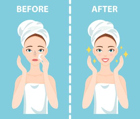 Before-After-Set von Unruhestifter und glückliche Frau mit weiblichen Gesichtshaut Probleme muss sich um: Mitesser, verstopfte Nase Poren. Standard-Bild - 79167090