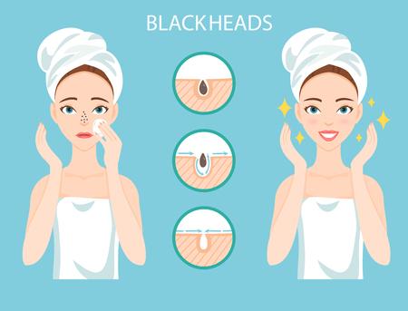 Mujer preocupada con el problema de la piel del rostro femenino necesita preocuparse: Infografía de los poros obstruidos de la nariz y espinillas. Etapas de tratamiento y limpieza. Ilustración de vector