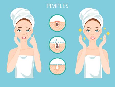 Beunruhigte Frau mit weiblichen Gesichtshaut Problem muss sich um: Infografik von Pickel und Stufen ihrer Behandlung und Clearance. Standard-Bild - 79248042