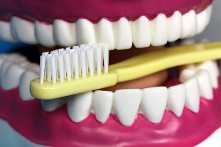 molares: Modelo de mandíbula  Foto de archivo