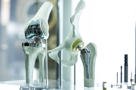 Modern knee and hip prosthesis made by cad engineer and manufactured by 3d printing Stock Photo - 59564962
