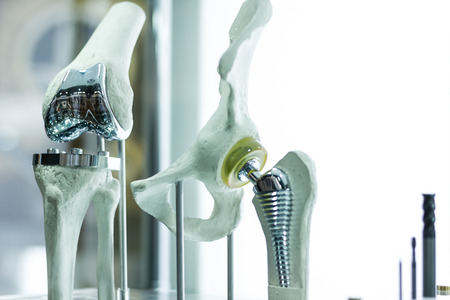 osteoporosis: rodilla y cadera prótesis moderna hecha por el ingeniero cad y fabricado por la impresión en 3D