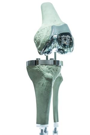Moderne Knie- und Hüftprothesen von cad Ingenieur und hergestellt von 3D-Druck gemacht Standard-Bild