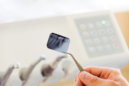Close-up of x-ray photo of tooth in dentist workplace with dentist equipment and tools for treatment teeth. Dentist workplace. Stock Photo